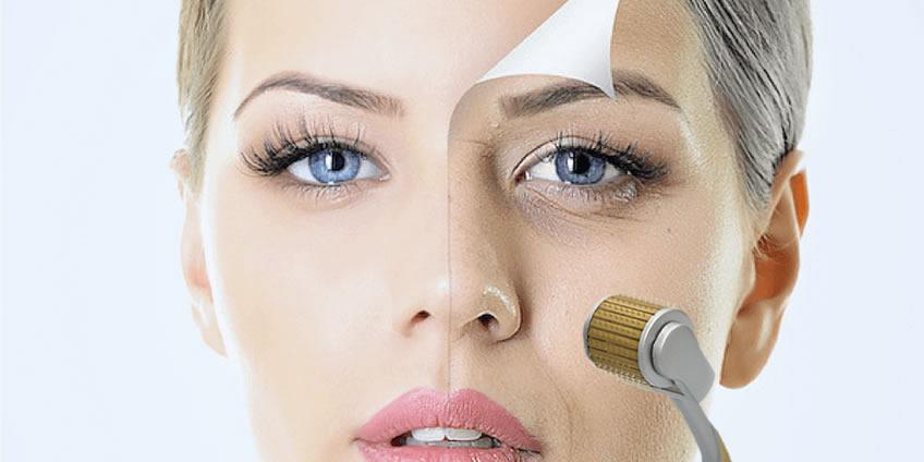 Microagulhamento - Fotos do Antes e o Depois do Tratamento