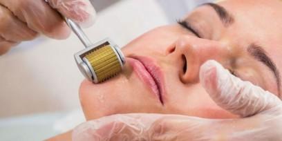 Microagulhamento - O que é, para que serve e os benefícios para a pele